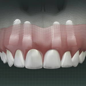 Removable Prosthetic Options for Implant Dentistry eBook Thumbnail