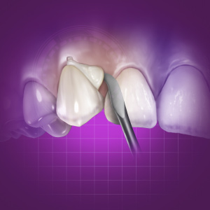 Zirconia Cementation: Increasing Predictability eBook Thumbnail