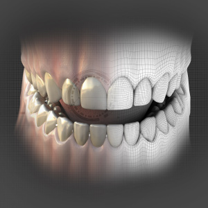 Digital Workflow in Restorative Dentistry eBook Thumbnail