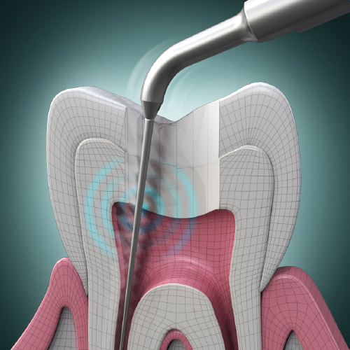 Paradigm Shifts in Endodontics eBook Thumbnail