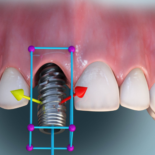 CBCT for Implant Dentistry Treatment Planning eBook Thumbnail