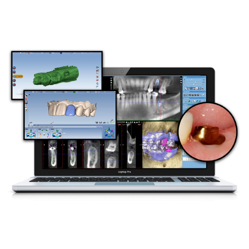 CAD/CAM: The Evolution of a Niche Product Into an Integral Part of Dentistry eBook Thumbnail