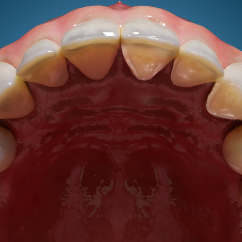 Dental Erosion: Definition, Causes, and Management eBook Thumbnail