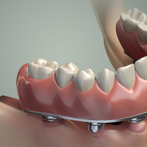 Cosmetic Implant Dentistry: Platform and Abutment Selection Considerations eBook Thumbnail