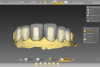 Fig 4. Tooth preparations and final design of the restorations in the initial software.
